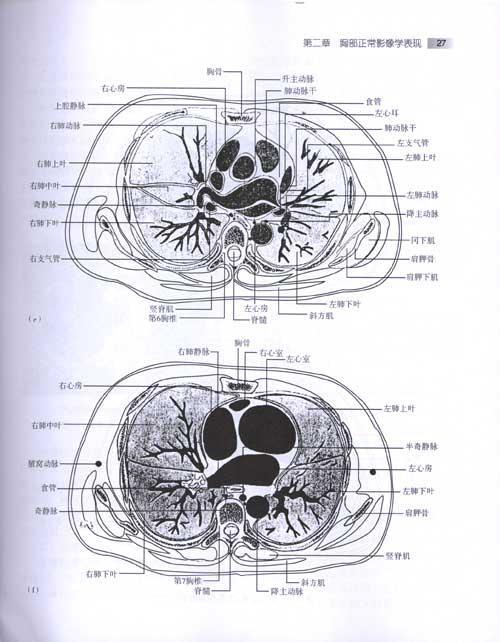 《胸部疾病影像鉴别诊断》()【简介|评价|摘要|在线
