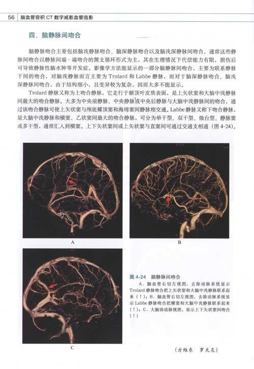 3d解剖图谱 健康茶座 powered by discuz-被斩首的美女头颅图
